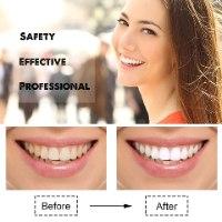 מכשיר חדשני להלבנת שיניים בייתית- S.whitener