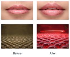 מכשיר LED מהפכני לעיבוי שפתיים – L.lips
