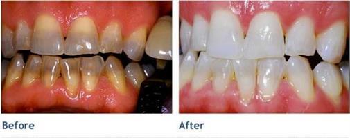 ערכת הלבנת השיניים הטובה והמוכחת ביותר בעולם