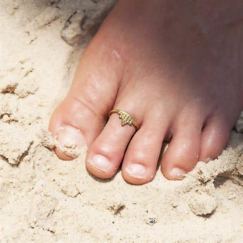 טבעת רגל מאנה בראס