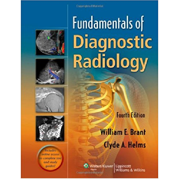 Fundamentals of Diagnostic Radiology - 4 Volume Set