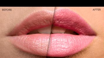 גלוס מילוי שפתיים - Lip Plumping Magical