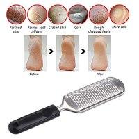 מכשיר להסרת עור יבש בכף הרגל