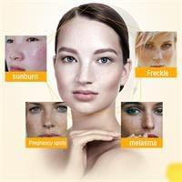 קרם קוריאני להסרת כתמי פיגמנטציה ולהבהרת העור- perfect skin