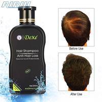 """שמפו לחיזוק זקיק השיערה ועצירת נשירת שיער - 200 מ""""ל"""