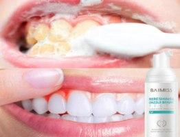 ספריי מוס להלבנת השיניים