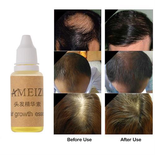 תכשיר שמגביר את צמיחת השיער