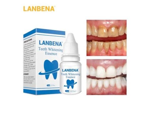 טיפות להלבנה ושמירה על השיניים