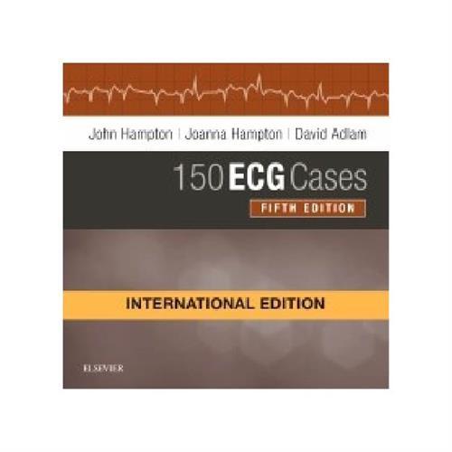 150 ECG Cases