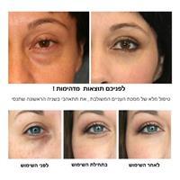 מסכת עיניים משולבת-  Gold eye