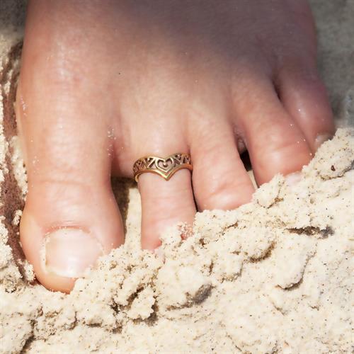 טבעת רגל סומא בראס