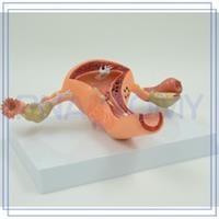 דגם אנטומי של פתולוגיות נפוצות של מערכת הרביה הנשית