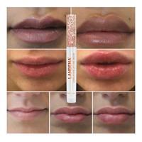 שפתון מגדיל שפתיים