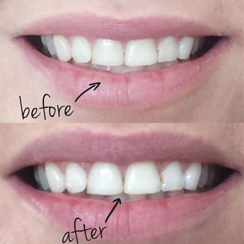 משחת במבוק להלבנת השיניים 100% חומרים טבעיים