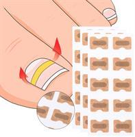 מדבקות ריפוי לציפורן חודרנית- HealignailS.K