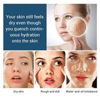 שמן להלבנת העור