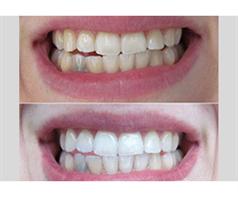 Whiter - מלבין השיניים האולטימטיבי