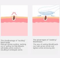 מברשת חשמלית לניקוי פנים- E.brushclean