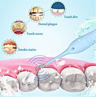 ידית רופא דנטלית לניקוי אבנית, כתמי קפה וצהוב בשניים ללא חשש לפגיעה בשן