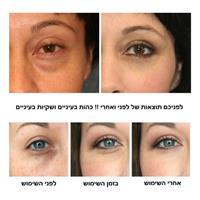 מסכת עיניים חומצה היאלרונית