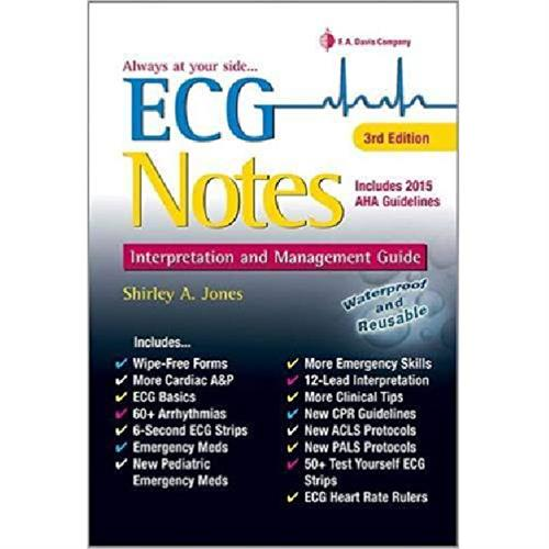 ECG Notes: Interpretation and Management Guide