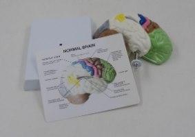 בהזמנה מראש: דגם אנטומי 6121 - חתך מוח אנושי צבעוני בגודל טבעי על סטנד