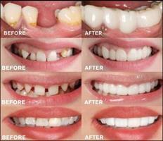 כיסוי שיניים קוסמטי להתאמה אישית - Fit Flex