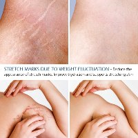 שמן טיפולי לשיקום וריפוי סימני מתיחה בעור
