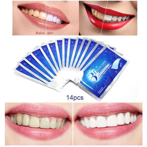 ערכת 14 יח' 'הלבנת שיניים של Crest 3D White