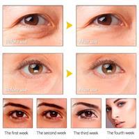סרום עיניים-מיצוק העור