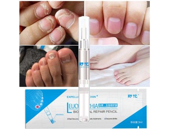 עט מריחה לטיפול בפטרת ציפורניים רגליים וידיים