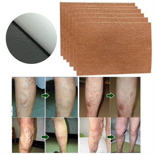 חבילת ריפוי לוורידים בולטים, מתאים לכל מקום בגוף, 9 מדבקות בחבילה