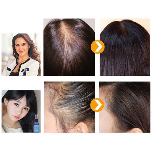 ספרי לשיקום השיער מכיל חומרים טבעיים בלבד