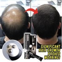 רולר משולש לצמיחת שיער אינטנסיבית בקרקפת