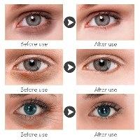 קרם עיניים לטיפול בכהויות - BIOAOUA