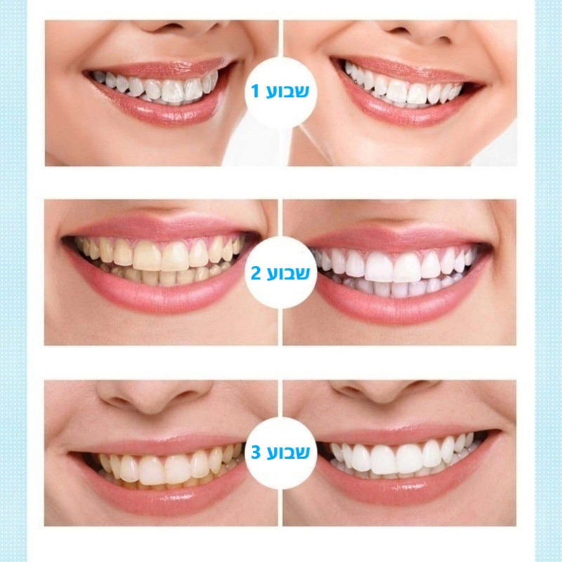 תהליך הלבנת השיניים תוך 3 שבועות