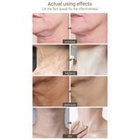 קרם למניעת קמטי צוואר והזדקנות