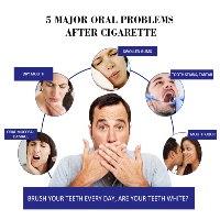 משחת שיניים למעשנים להלבנה ומניעת כתמים