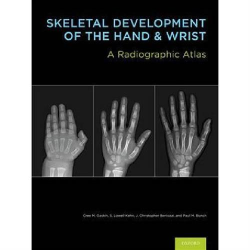 Skeletal Development of the Hand and Wrist : A Radiographic Atlas and Digital Bone Age Companion