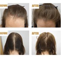 סרום להצמחת שיער