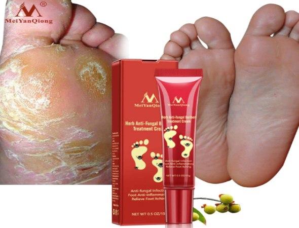 משחה ייחודית לטיפול בפטריות ברגליים