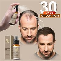 ספריי לטיפול בנשירה ובהתקרחות המגביר צמיחת השיער