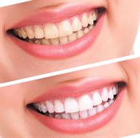 ערכה ביתית להלבנת שיניים