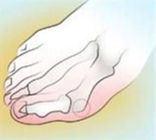 סד מיישר לטיפול בעצם בולטת