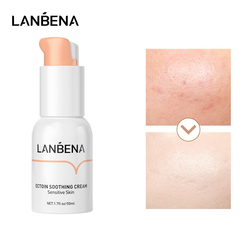 קרם לחות אנטי אלרגי להרגעת העור