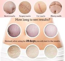 קרם להסרת צלוליט וצלקות לעיצוב וחידוש העור