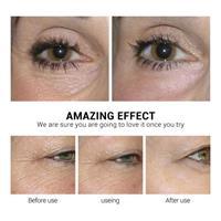 מסכת עיניים-להפחתת קמטים