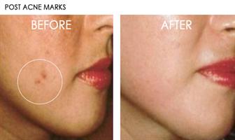 שמן ויטמין C מרוכז מאוד להלבנת העור