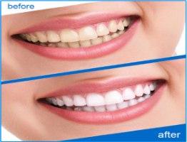 סט 14 מדבקות להלבנת שיניים ביתית