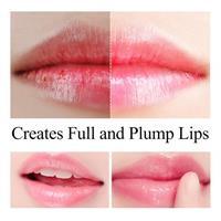 שפתון הזנה היאלרוני